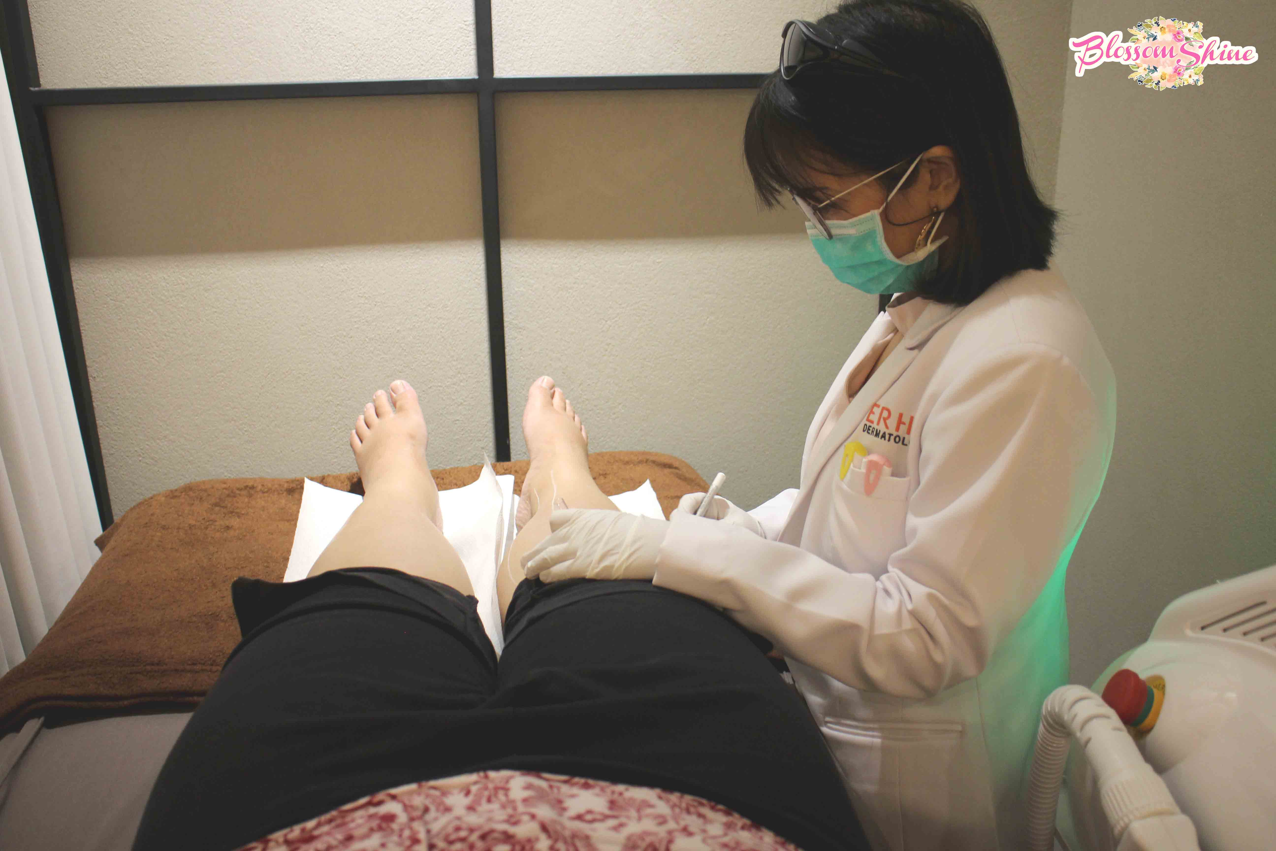 Review ERHAIR Removeasy Hair Removal By IPL